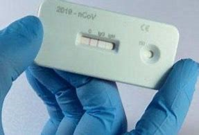 Sanidad advierte que dar positivo en un test de autodiagnóstico comprado en una farmacia debe ser valorado y confirmado por el SES